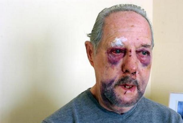 Two men arrested after Southend cab driver Ken, 77, beaten up for £11 fare
