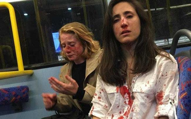Melania Geymonat (right) and her girlfriend Chris after they were assaulted by a gang of men on a night bus in Camden. Scotland Yard are investigating what they are calling a homophobic attack CREDIT: MELANIA GEYMONAT /FACEBOOK